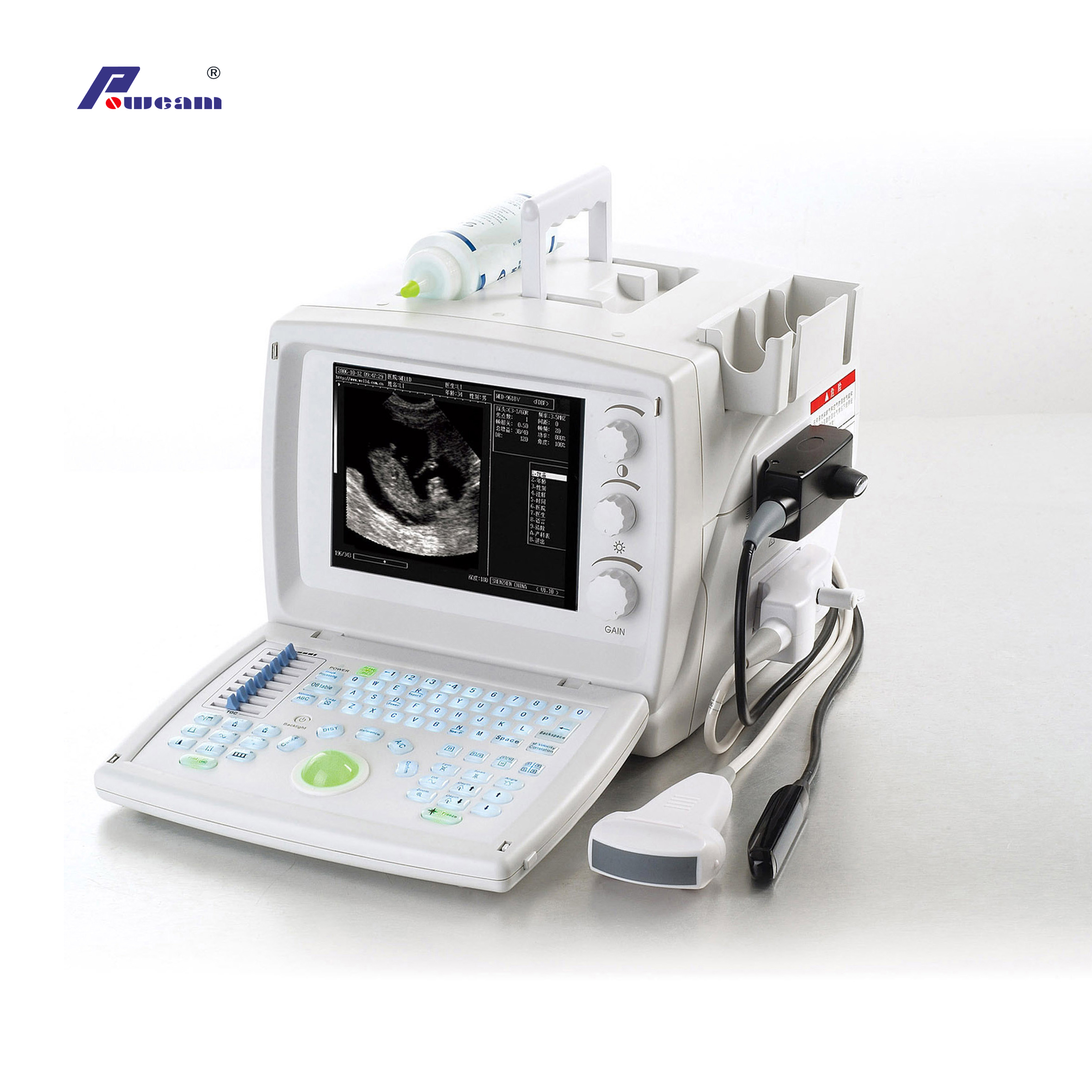 Digital Portable Veterinary Ultrasound